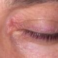 Блефарит очей. симптоми блефарити у дітей, види блефарити, лікування.